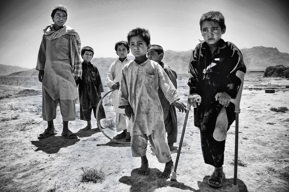 An Afghan boy who lost his leg by landmine stands with his friends.